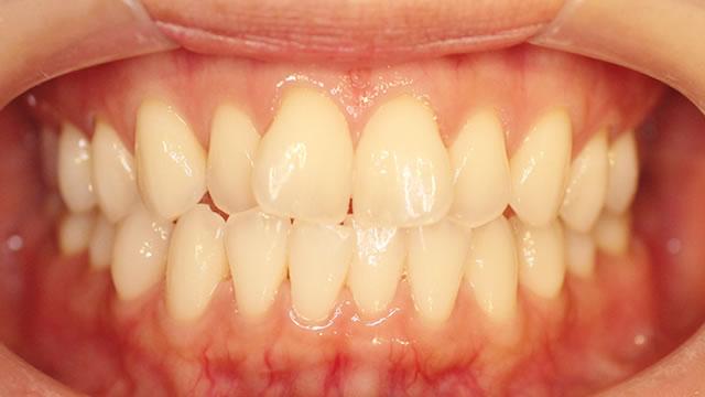 前歯の正面写真(治療前)