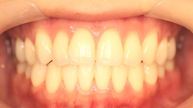 前歯の正面写真(治療後)