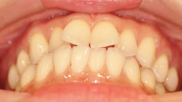 下からみた前歯(治療前)