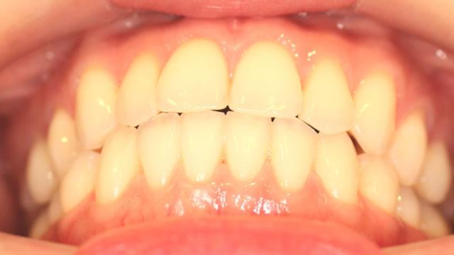 下からみた前歯(治療後)