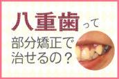 八重歯は部分矯正で治る!期間を短く費用も抑えられる八重歯の矯正